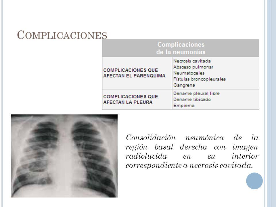 C OMPLICACIONES Consolidación neumónica de la región basal derecha con imagen radiolucida en su interior correspondiente a necrosis cavitada.