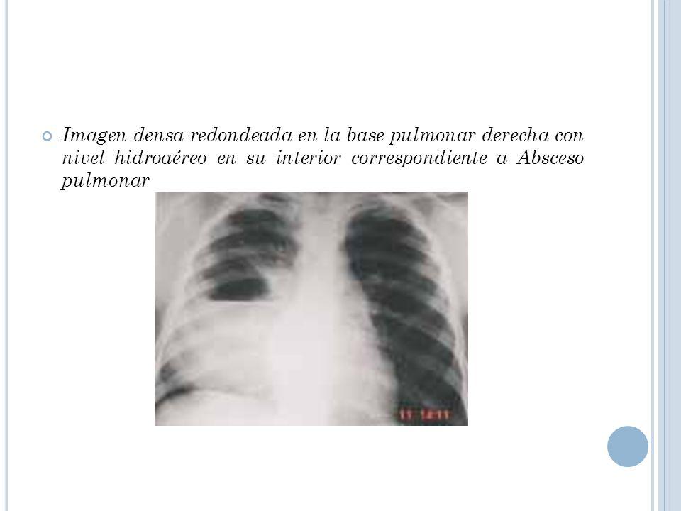 Imagen densa redondeada en la base pulmonar derecha con nivel hidroaéreo en su interior correspondiente a Absceso pulmonar
