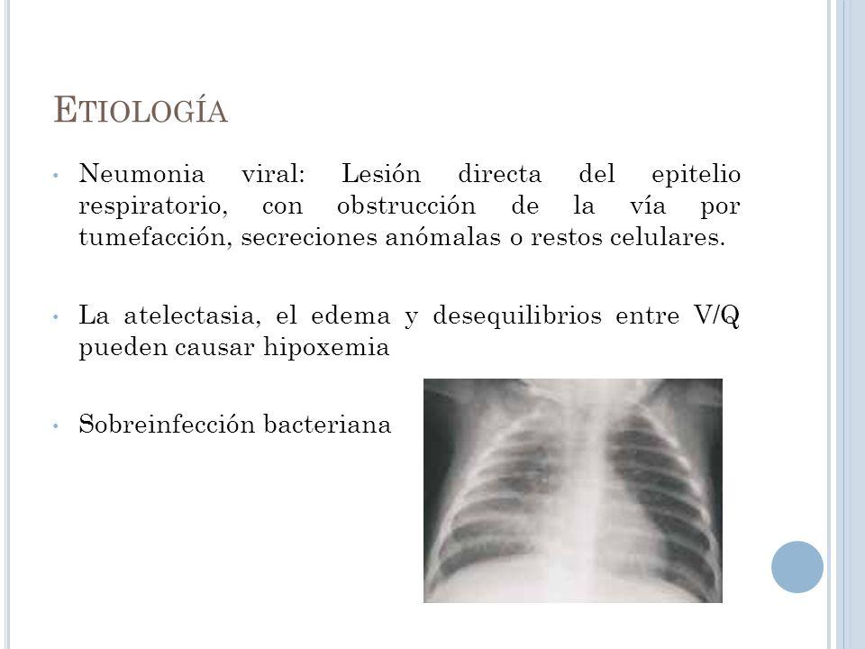 E TIOLOGÍA Neumonia viral: Lesión directa del epitelio respiratorio, con obstrucción de la vía por tumefacción, secreciones anómalas o restos celulare