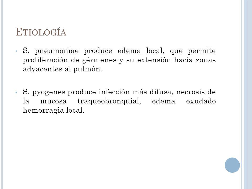 E TIOLOGÍA S. pneumoniae produce edema local, que permite proliferación de gérmenes y su extensión hacia zonas adyacentes al pulmón. S. pyogenes produ