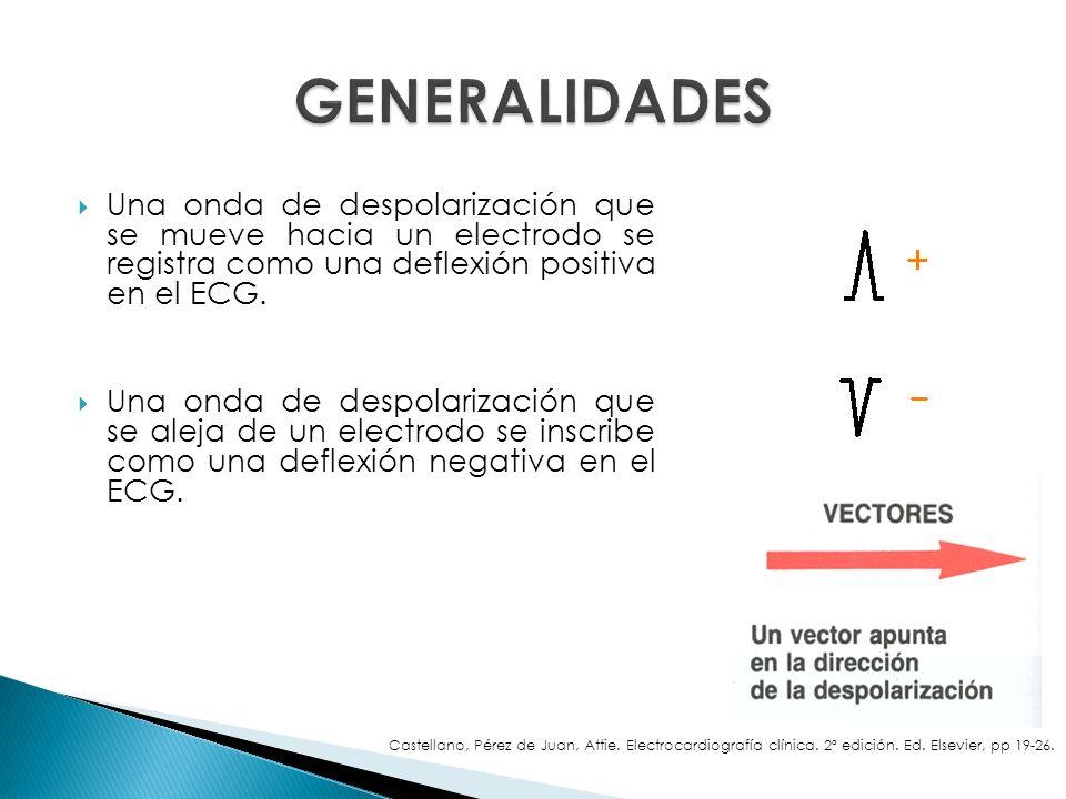 Una onda de despolarización que se mueve hacia un electrodo se registra como una deflexión positiva en el ECG. Una onda de despolarización que se alej