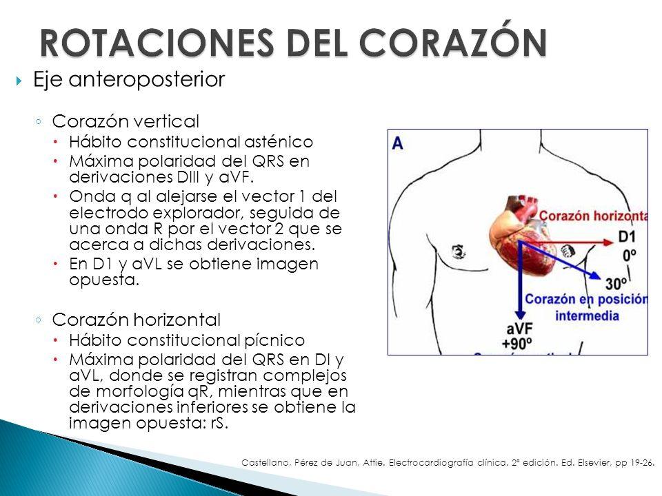 Eje anteroposterior Corazón vertical Hábito constitucional asténico Máxima polaridad del QRS en derivaciones DIII y aVF. Onda q al alejarse el vector