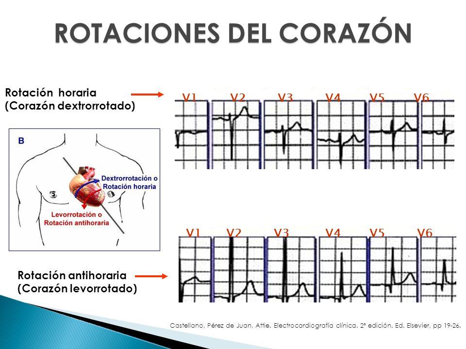 Rotación horaria (Corazón dextrorrotado) Rotación antihoraria (Corazón levorrotado) V5V1V2V3V4V6 V1 V2V3V4V6V5 ROTACIONES DEL CORAZÓN Castellano, Pére
