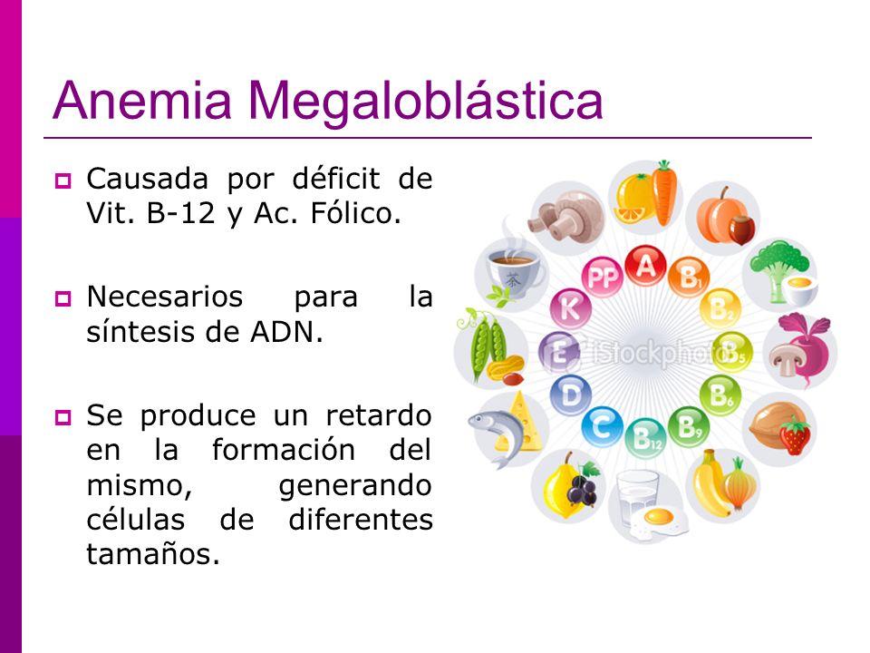 Anemia Megaloblástica Causada por déficit de Vit. B-12 y Ac. Fólico. Necesarios para la síntesis de ADN. Se produce un retardo en la formación del mis
