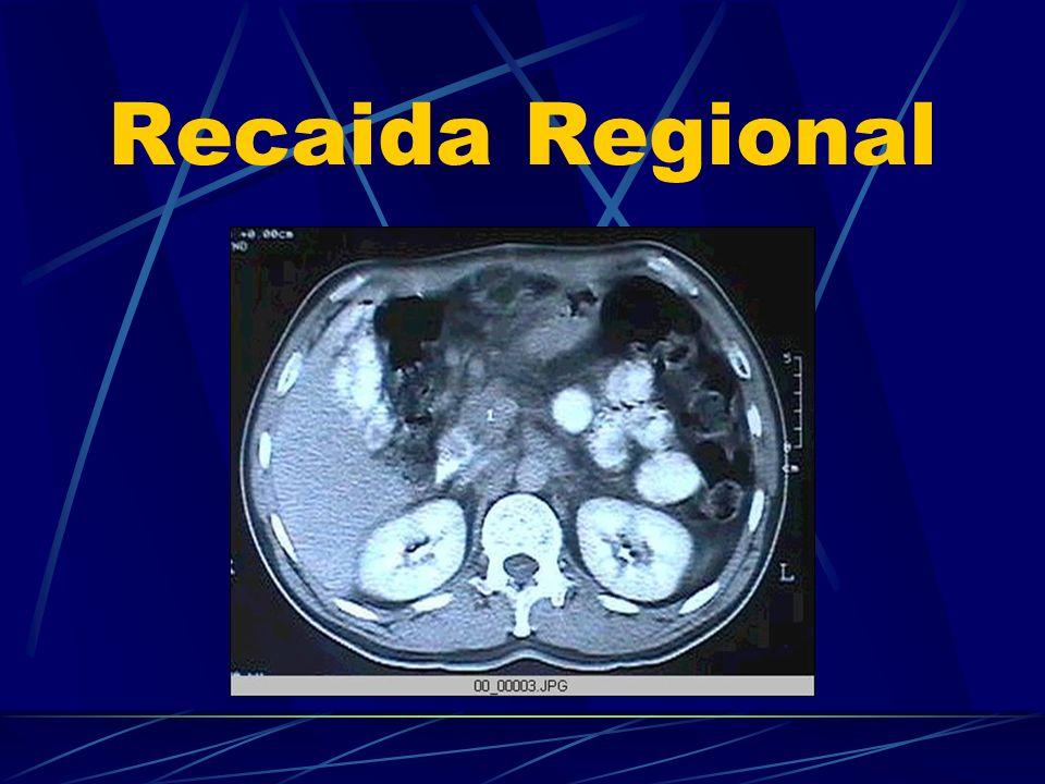 Recaida Regional