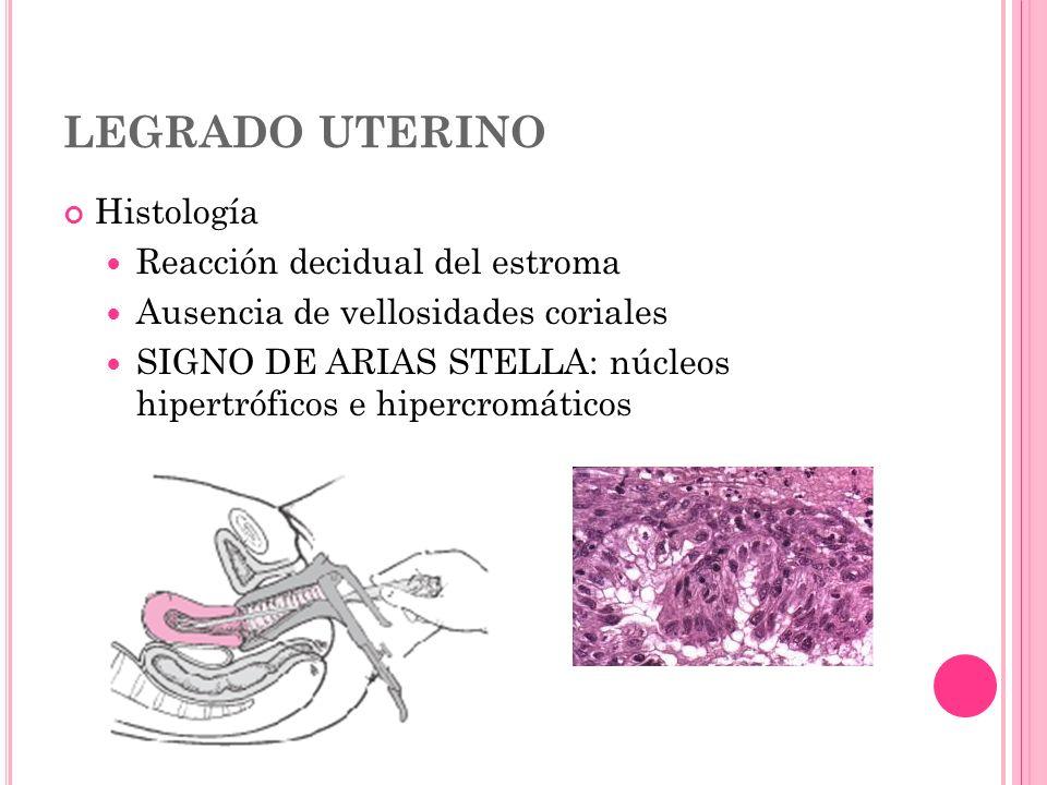 LEGRADO UTERINO Histología Reacción decidual del estroma Ausencia de vellosidades coriales SIGNO DE ARIAS STELLA: núcleos hipertróficos e hipercromáti