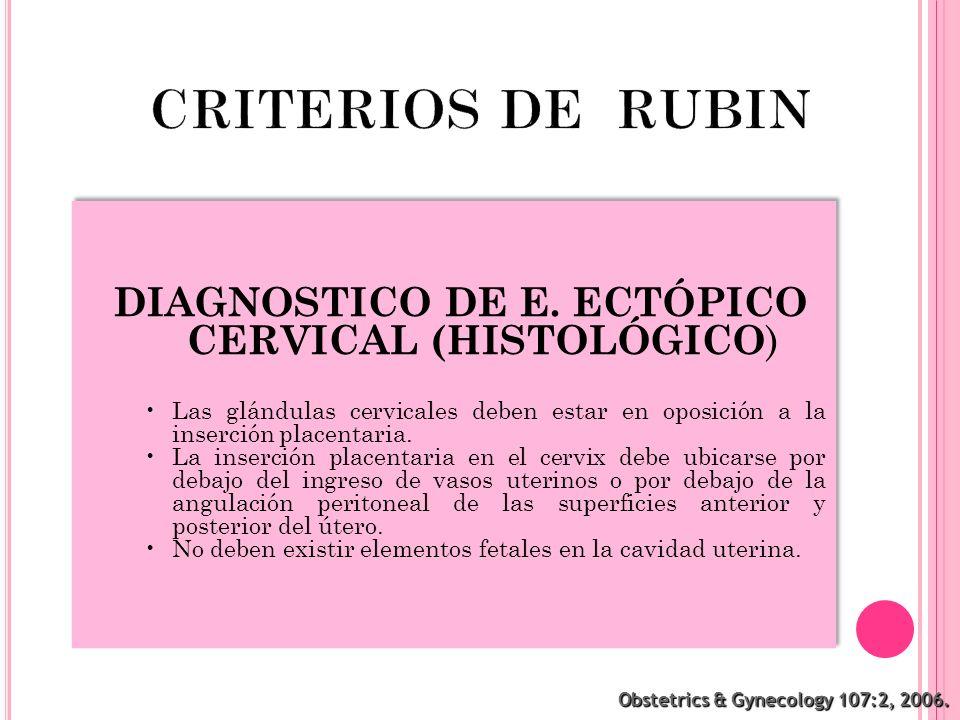 Obstetrics & Gynecology 107:2, 2006. DIAGNOSTICO DE E. ECTÓPICO CERVICAL (HISTOLÓGICO ) Las glándulas cervicales deben estar en oposición a la inserci