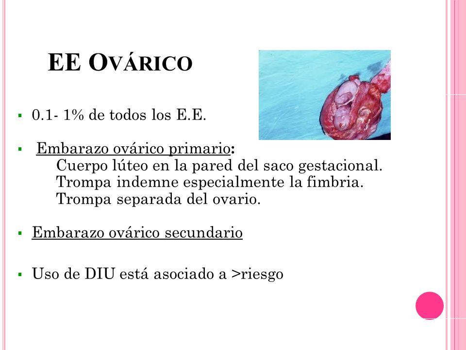 EE O VÁRICO 0.1- 1% de todos los E.E. Embarazo ovárico primario : Cuerpo lúteo en la pared del saco gestacional. Trompa indemne especialmente la fimbr