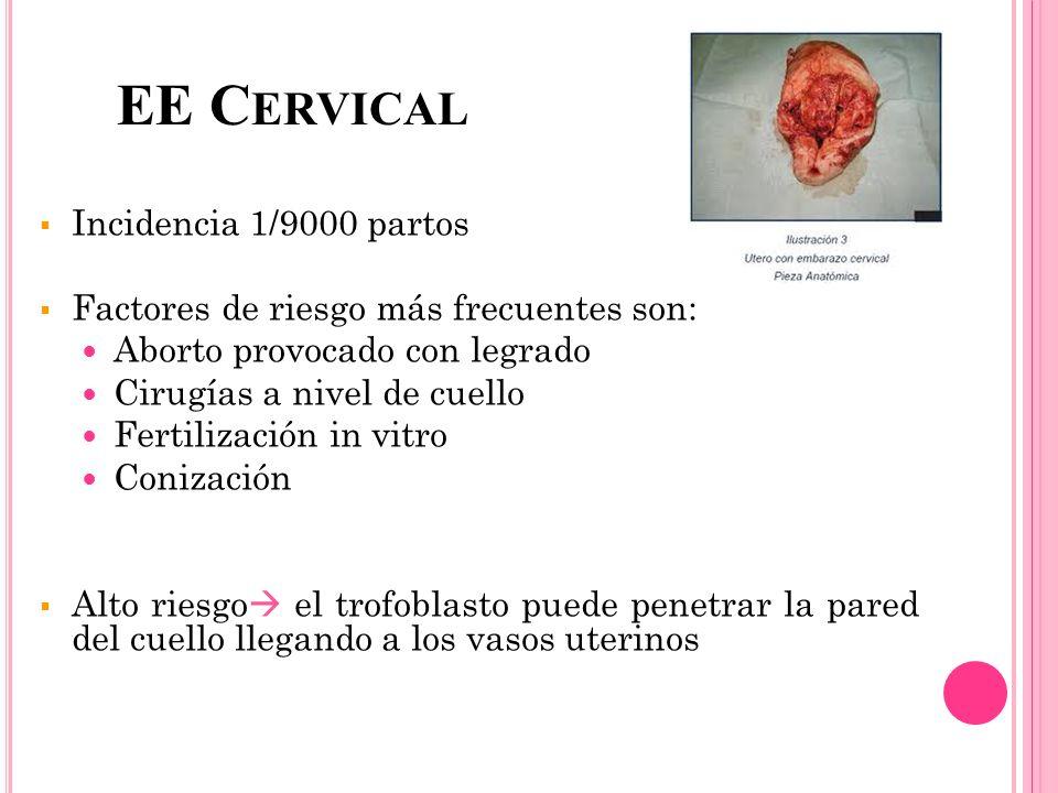 EE C ERVICAL Incidencia 1/9000 partos Factores de riesgo más frecuentes son: Aborto provocado con legrado Cirugías a nivel de cuello Fertilización in