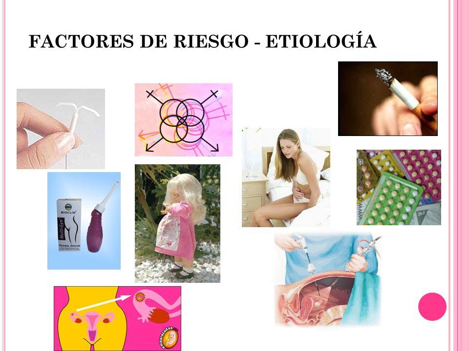 FACTORES DE RIESGO - ETIOLOGÍA