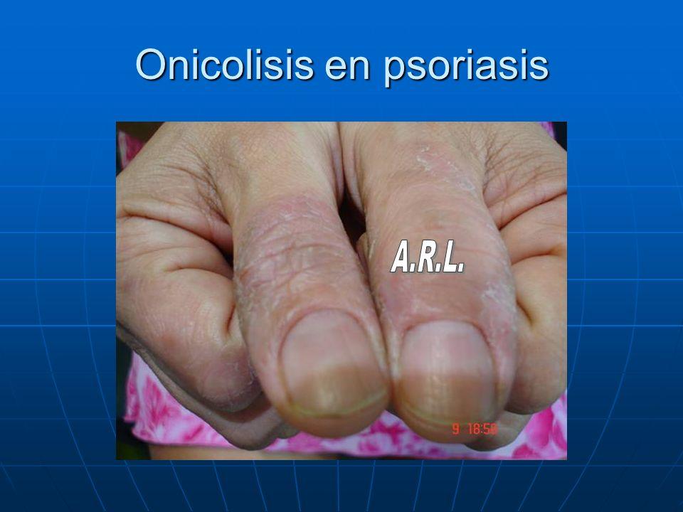 Onicolisis