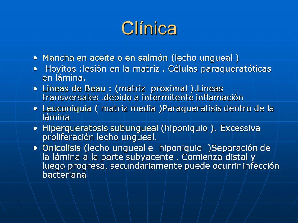 Clínica Mancha en aceite o en salmón (lecho ungueal )Mancha en aceite o en salmón (lecho ungueal ) Hoyitos :lesión en la matriz.