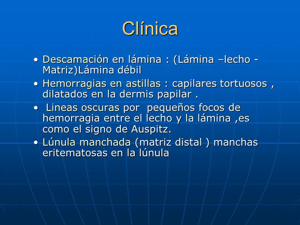 Clínica Mancha en aceite o en salmón (lecho ungueal )Mancha en aceite o en salmón (lecho ungueal ) Hoyitos :lesión en la matriz. Células paraqueratóti