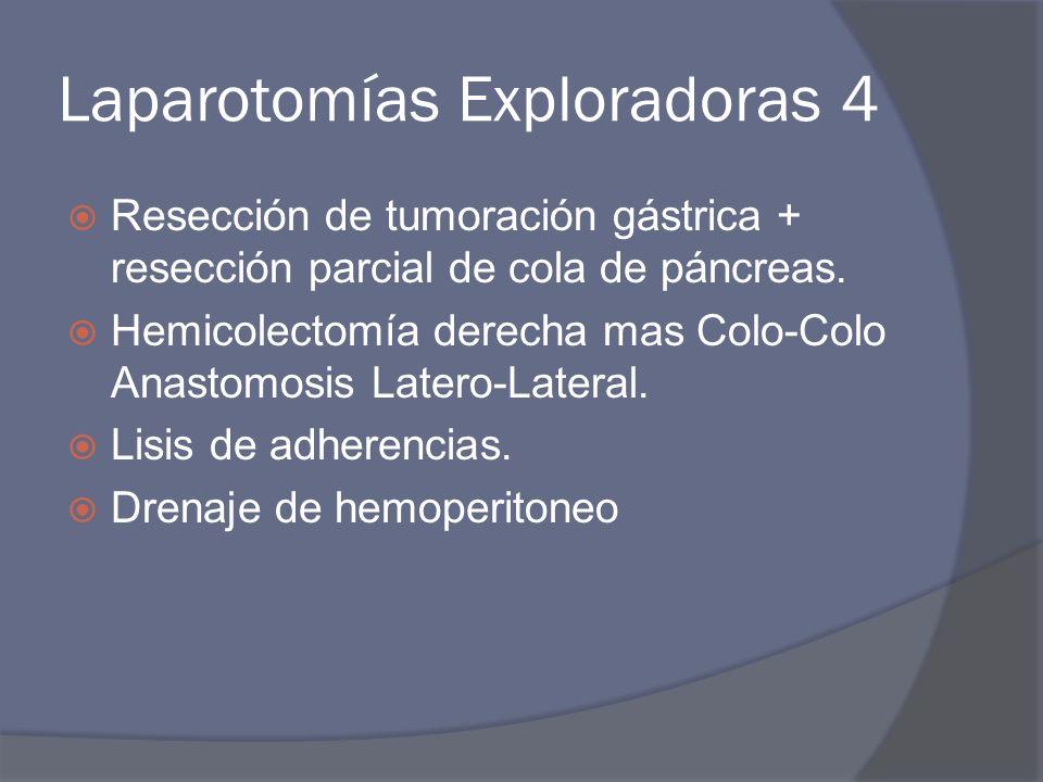 Laparotomías Exploradoras 4 Resección de tumoración gástrica + resección parcial de cola de páncreas. Hemicolectomía derecha mas Colo-Colo Anastomosis