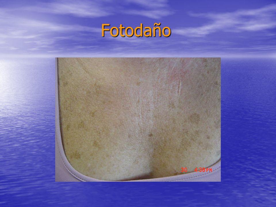 Fotodaño Fotodaño