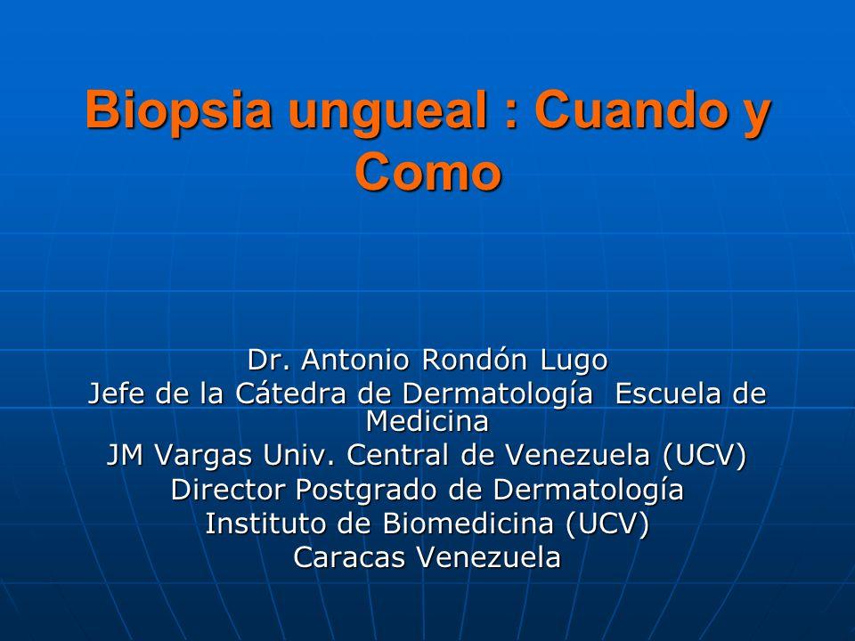 Biopsia ungueal : Cuando y Como Dr.