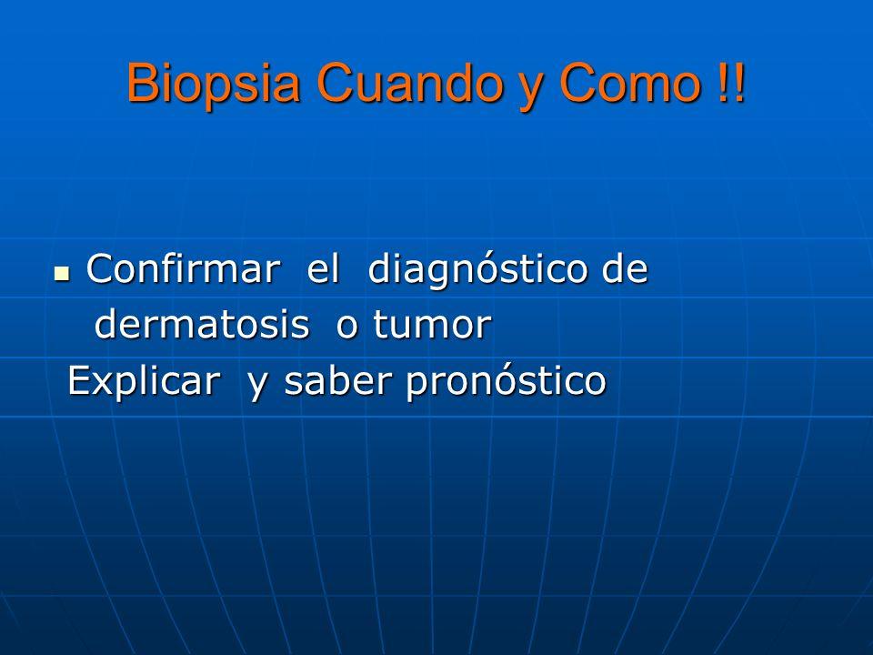 Biopsia Cuando y Como !.