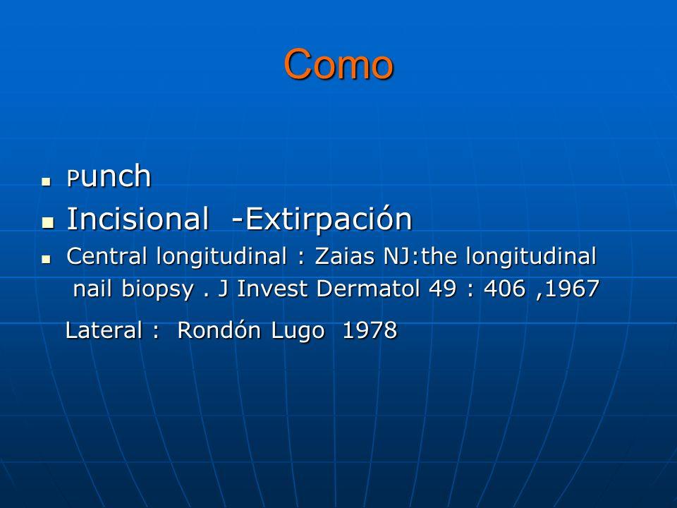 Como P unch P unch Incisional -Extirpación Incisional -Extirpación Central longitudinal : Zaias NJ:the longitudinal Central longitudinal : Zaias NJ:the longitudinal nail biopsy.