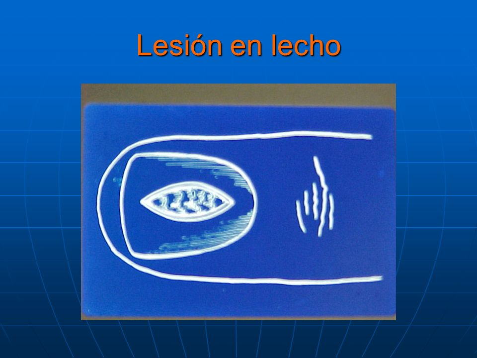 Como P unch P unch Incisional -Extirpación Incisional -Extirpación Central longitudinal : Zaias NJ:the longitudinal Central longitudinal : Zaias NJ:the longitudinal nail biopsy.