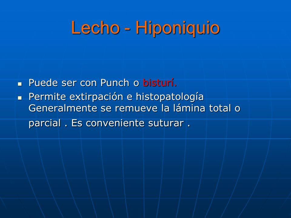 Lecho - Hiponiquio Puede ser con Punch o bisturí.Puede ser con Punch o bisturí.