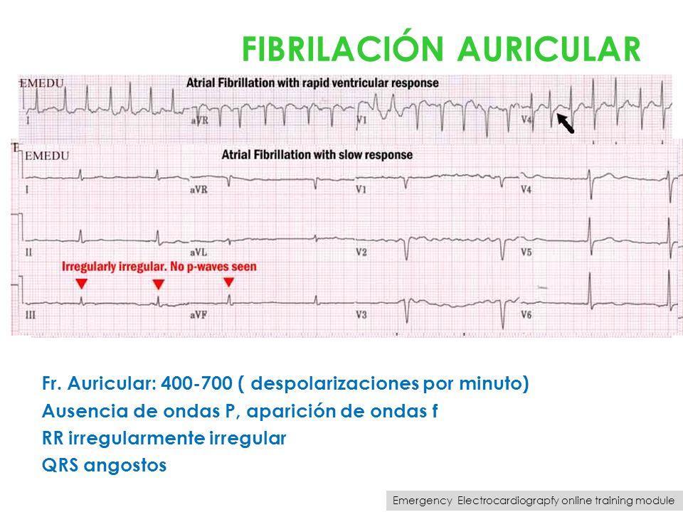 FIBRILACIÓN AURICULAR Fr. Auricular: 400-700 ( despolarizaciones por minuto) Ausencia de ondas P, aparición de ondas f RR irregularmente irregular QRS