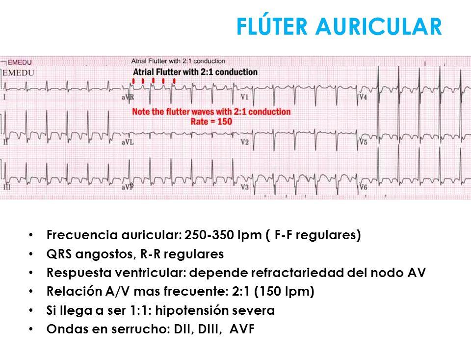 Frecuencia auricular: 250-350 lpm ( F-F regulares) QRS angostos, R-R regulares Respuesta ventricular: depende refractariedad del nodo AV Relación A/V