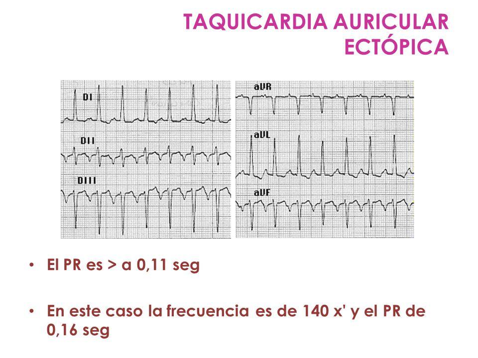 El PR es > a 0,11 seg En este caso la frecuencia es de 140 x' y el PR de 0,16 seg TAQUICARDIA AURICULAR ECTÓPICA