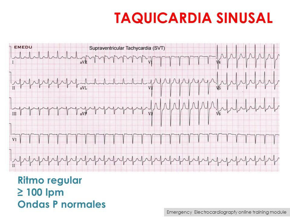 TAQUICARDIA SINUSAL Ritmo regular 100 lpm Ondas P normales Emergency Electrocardiograpfy online training module