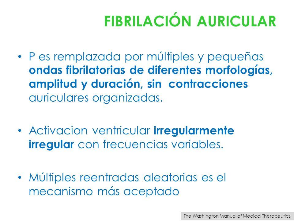 FIBRILACIÓN AURICULAR P es remplazada por múltiples y pequeñas ondas fibrilatorias de diferentes morfologías, amplitud y duración, sin contracciones a
