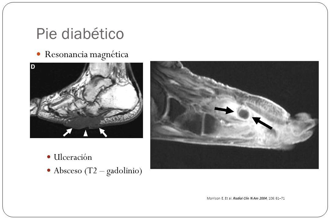 Pie diabético Resonancia magnética Ulceración Absceso (T2 – gadolinio) Morrison E. Et al. Radiol Clin N Am 2004; 106: 61–71