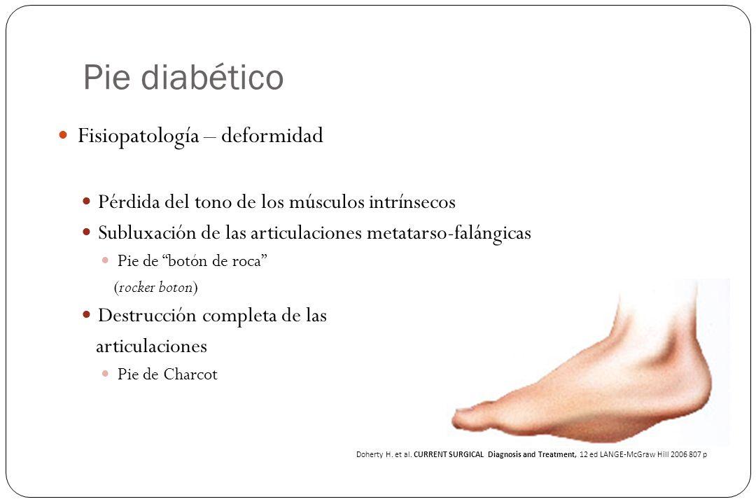 Pie diabético Fisiopatología – deformidad Pérdida del tono de los músculos intrínsecos Subluxación de las articulaciones metatarso-falángicas Pie de b