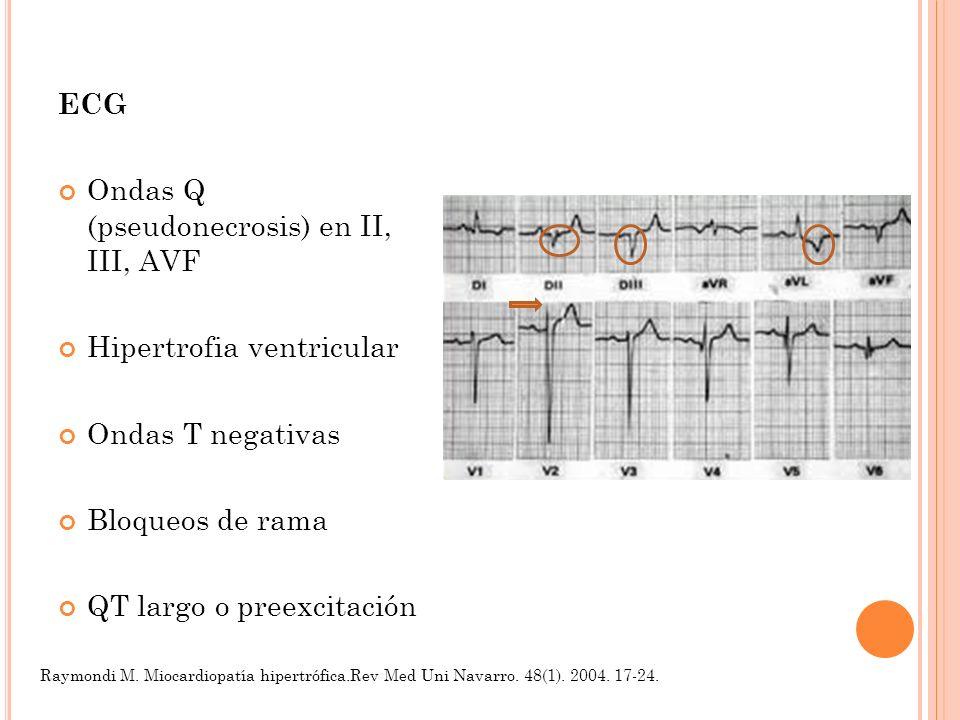 ECG Ondas Q (pseudonecrosis) en II, III, AVF Hipertrofia ventricular Ondas T negativas Bloqueos de rama QT largo o preexcitación Raymondi M. Miocardio