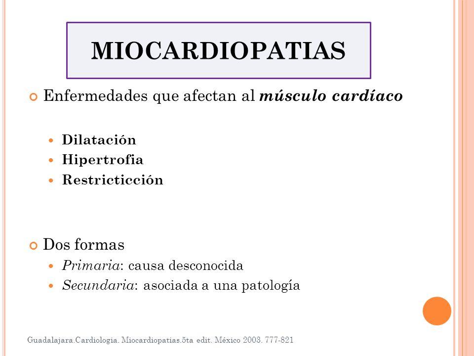 Miocardiopatía Dilatada Las cavidades se dilatan por daño de la fibra miocardica, sin que exista una sobrecarga volumétrica Miocardiopatía Hipertrófica Hipertrofia de paredes cardíacas, por una enfermedad primaria del miocardio, sin que exista sobrecarga hemodinámica Miocardiopatía restrictiva Fibras miocárdicas son substituidas por tejido fibroso o infiltradas por materiales extraños, el corazón se torna rígido impidiendo el llenado ventricular Guadalajara.Cardiologia.