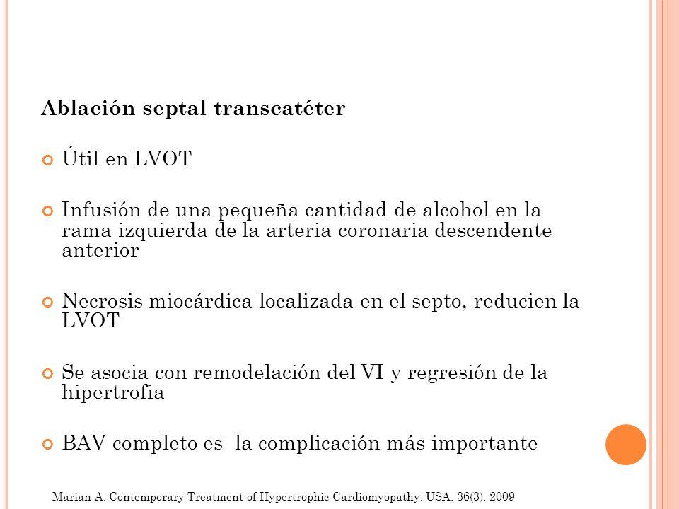 Ablación septal transcatéter Útil en LVOT Infusión de una pequeña cantidad de alcohol en la rama izquierda de la arteria coronaria descendente anterio