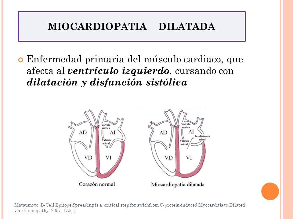Enfermedad primaria del músculo cardiaco, que afecta al ventrículo izquierdo, cursando con dilatación y disfunción sistólica MIOCARDIOPATIA DILATADA M