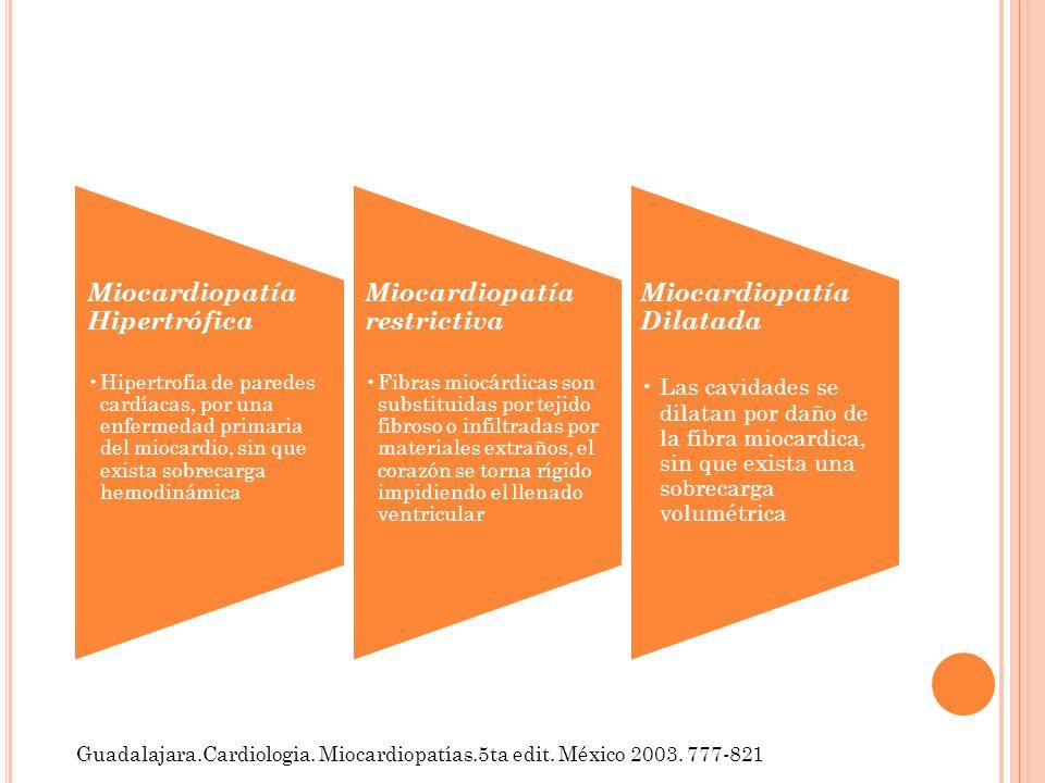 Miocardiopatía Dilatada Las cavidades se dilatan por daño de la fibra miocardica, sin que exista una sobrecarga volumétrica Miocardiopatía Hipertrófic