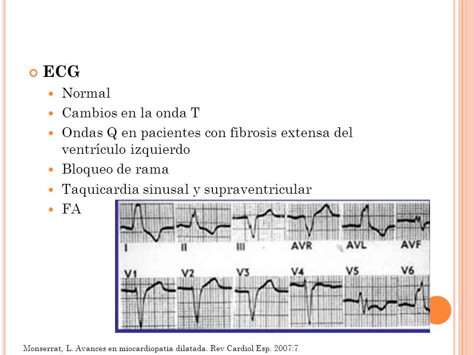 ECG Normal Cambios en la onda T Ondas Q en pacientes con fibrosis extensa del ventrículo izquierdo Bloqueo de rama Taquicardia sinusal y supraventricu