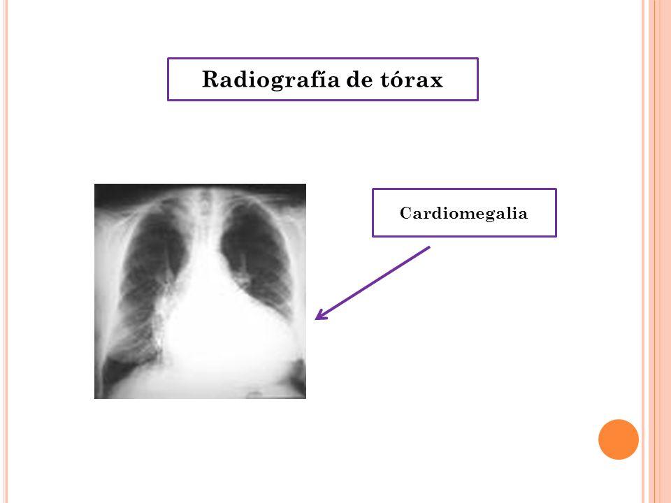 Radiografía de tórax Cardiomegalia