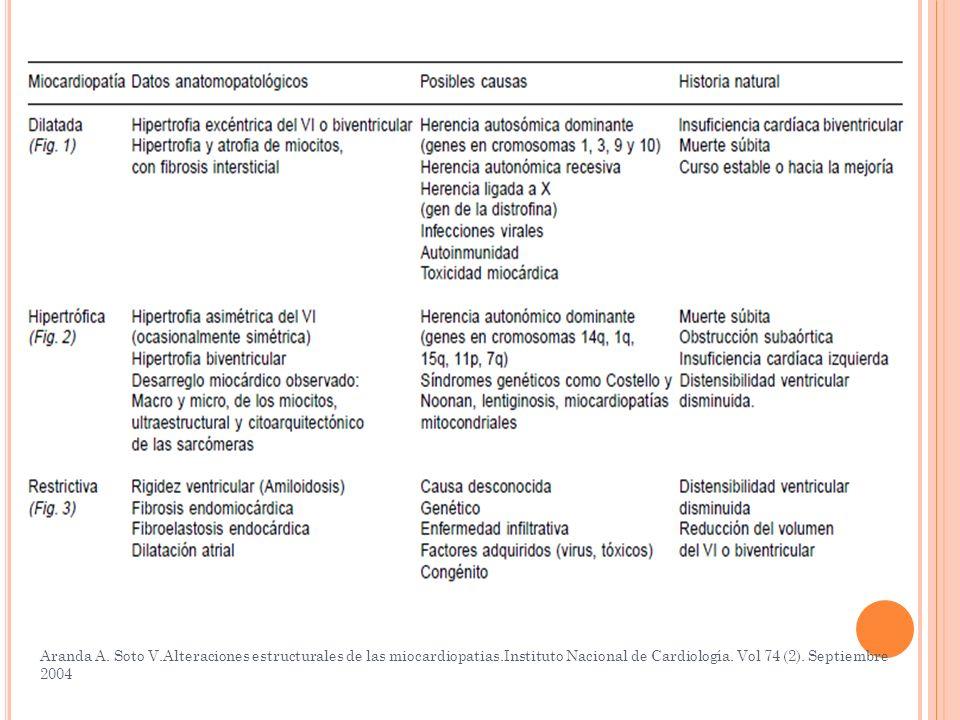 Aranda A. Soto V.Alteraciones estructurales de las miocardiopatias.Instituto Nacional de Cardiología. Vol 74 (2). Septiembre 2004