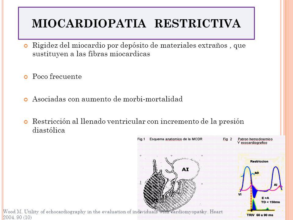 Rigidez del miocardio por depósito de materiales extraños, que sustituyen a las fibras miocardicas Poco frecuente Asociadas con aumento de morbi-morta