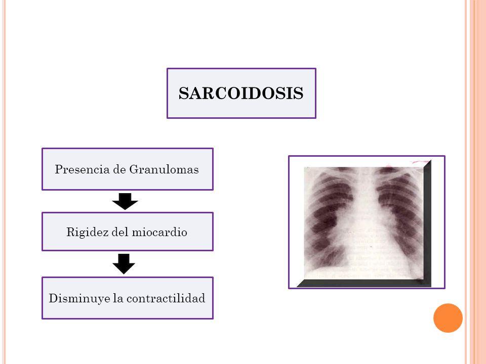 SARCOIDOSIS Presencia de Granulomas Rigidez del miocardio Disminuye la contractilidad