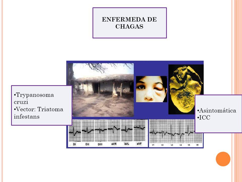 ENFERMEDA DE CHAGAS Trypanosoma cruzi Vector: Triatoma infestans Asintomática ICC