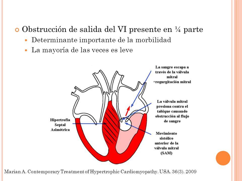Obstrucción de salida del VI presente en ¼ parte Determinante importante de la morbilidad La mayoría de las veces es leve Marian A. Contemporary Treat