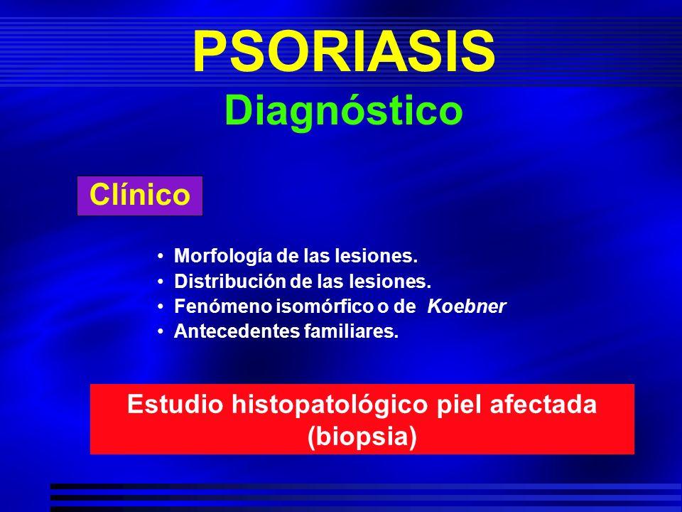 PSORIASIS Diagnóstico Clínico Morfología de las lesiones. Distribución de las lesiones. Fenómeno isomórfico o de Koebner Antecedentes familiares. Estu