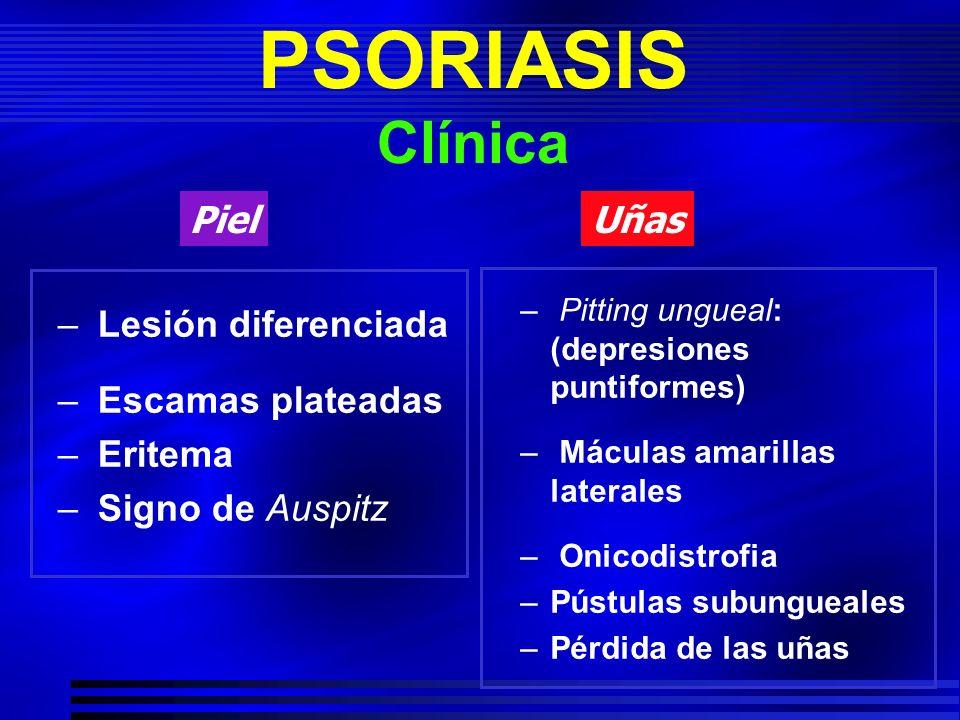 PSORIASIS Clínica – Lesión diferenciada – Escamas plateadas – Eritema – Signo de Auspitz – Pitting ungueal: (depresiones puntiformes) – Máculas amaril