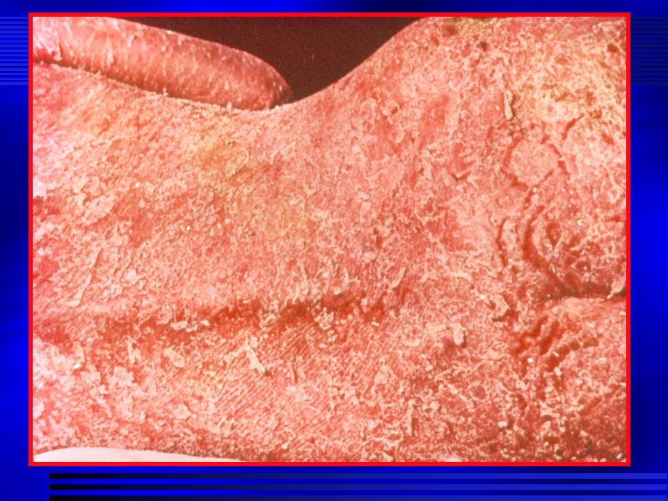 PSORIASIS Clínica Parámetros a evaluar grado de eritema grado de infiltración / induración grado de hiperqueratosis / descamación porcentaje de la superficie cutánea afecta Indices de intensidad: PASI (psoriasis assessment of severity index) valorar grado de mejoría del paciente en un tratamiento