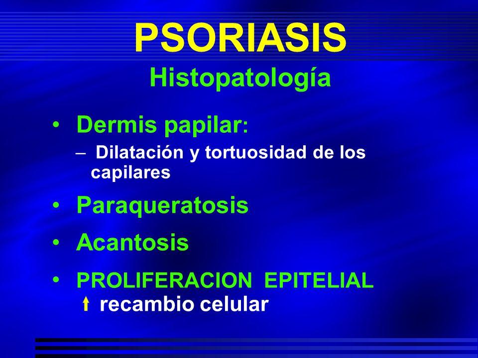 PSORIASIS Histopatología Dermis papilar : – Dilatación y tortuosidad de los capilares Paraqueratosis Acantosis PROLIFERACION EPITELIAL recambio celula