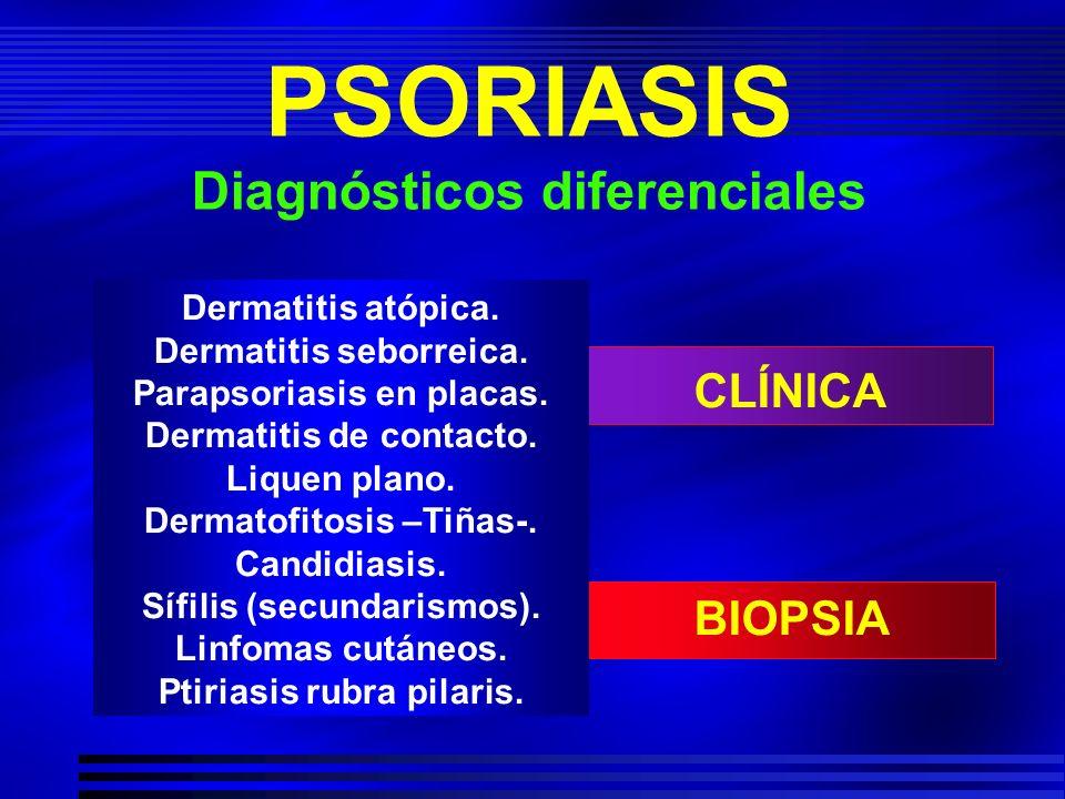 Dermatitis atópica. Dermatitis seborreica. Parapsoriasis en placas. Dermatitis de contacto. Liquen plano. Dermatofitosis –Tiñas-. Candidiasis. Sífilis