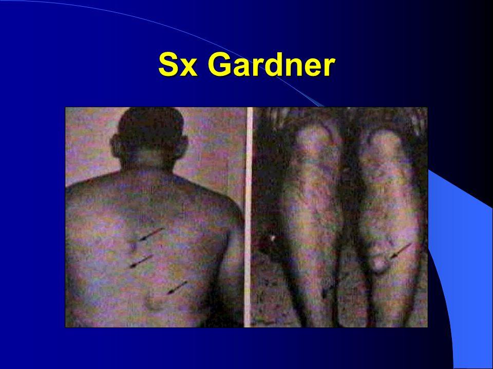 Cáncer de Colon FACTORES DE RIESGO Sx Turcot: AD y gliomas. Sx Oldfield: AR y quistes sebáceos.