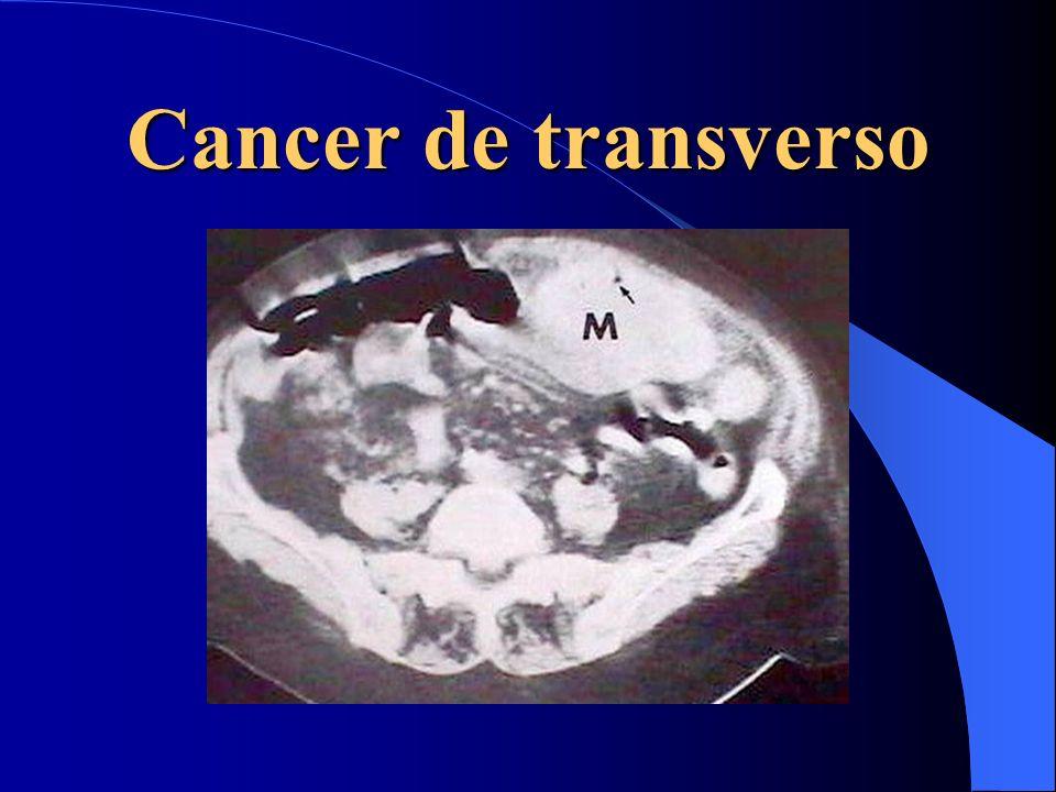 Cancer de transverso